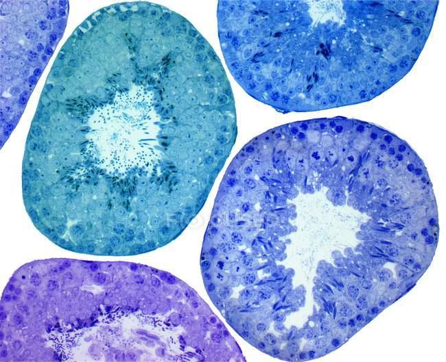 Túbulos seminíferos e células de empréstimo — Fotografia de Stock