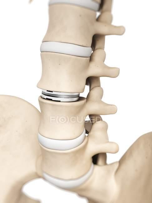 Lumbar Spine Anatomy Stock Photo 160227638