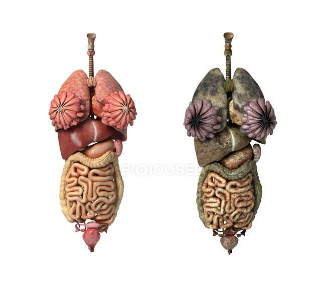 Órgãos femininos saudáveis e doentes — Fotografia de Stock