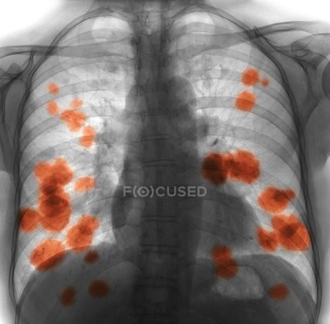 Цветной рентген груди 52-летней пациентки с метастатическим (вторичным) раком легких (желтый) ). — стоковое фото