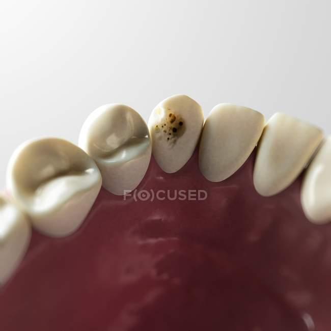 Visualizzazione della carie dentaria — Foto stock