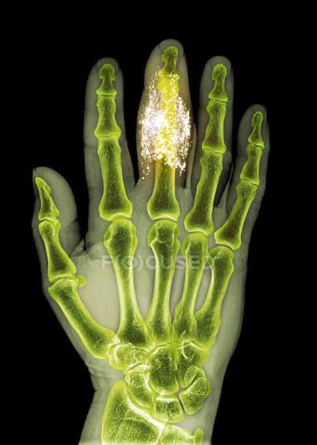 Cuerpo extraño en el dedo - foto de stock