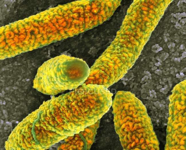 Escherichia-coli-Bakterien — Stockfoto