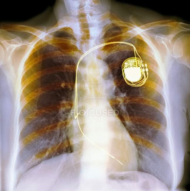 Двухкамерные кардиостимуляторы — стоковое фото