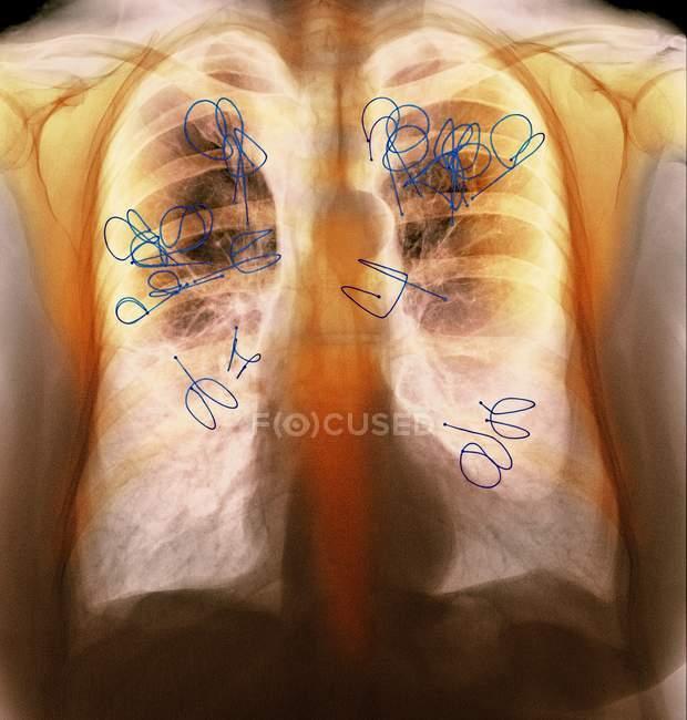 Válvulas endobronquiales equipadas para tratar la tuberculosis - foto de stock
