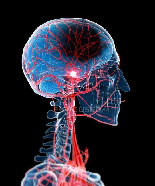 Anatomie pathologique des accidents vasculaires cérébraux — Photo de stock