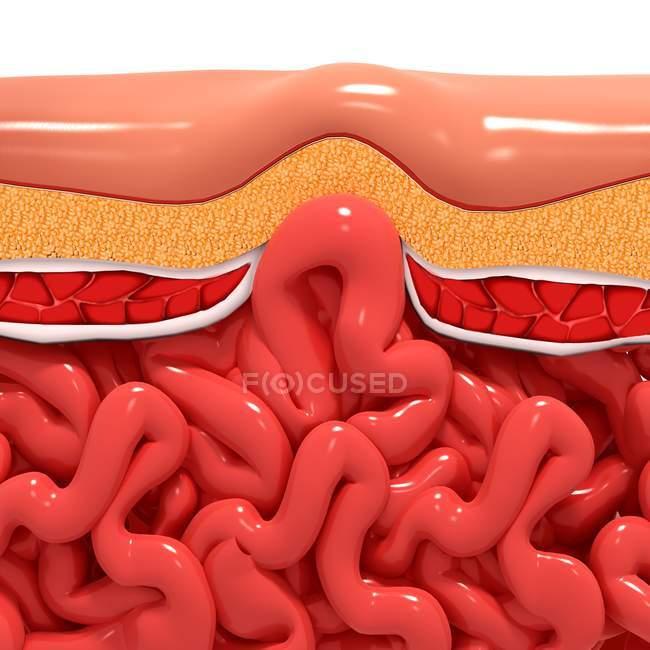 Anatomia patologica dell'ernia ventrale — Foto stock
