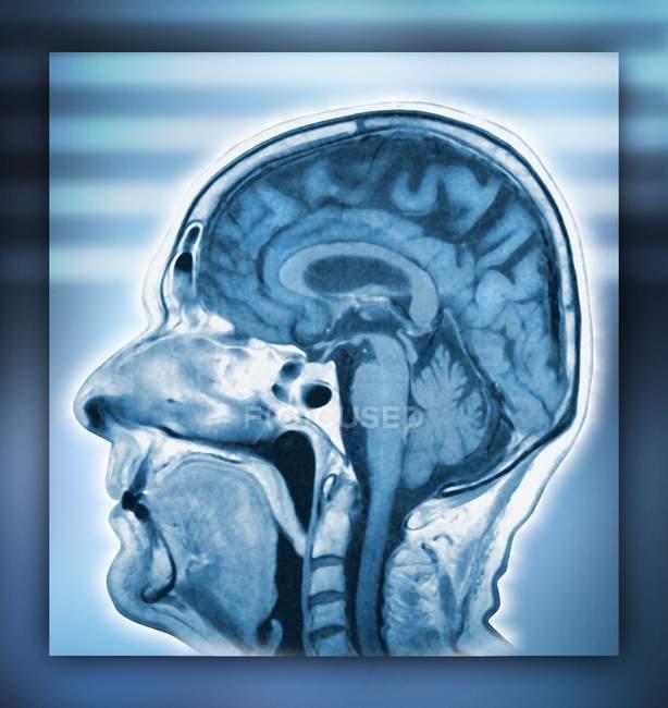 Cervello e testa normale — Foto stock