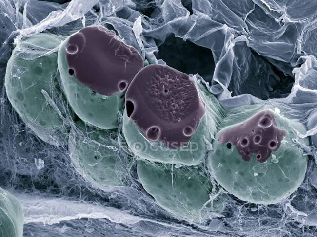 Tejido graso (adiposo), micrografía electrónica de barrido de color (SEM). Las células grasas (adipocitos, redondos) están rodeadas de fibras de colágeno. . - foto de stock