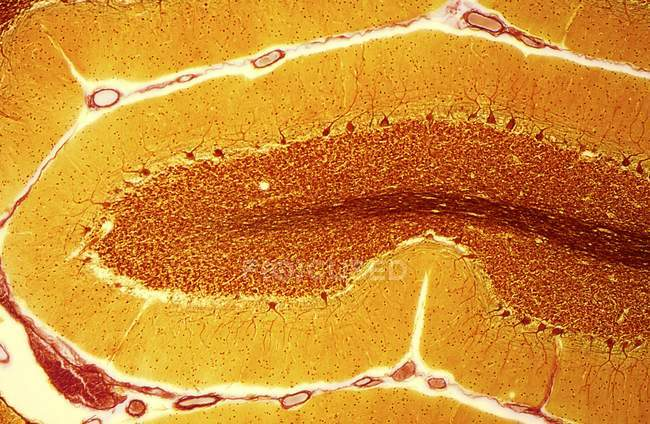 Section through the cerebellum in the brain — Stock Photo