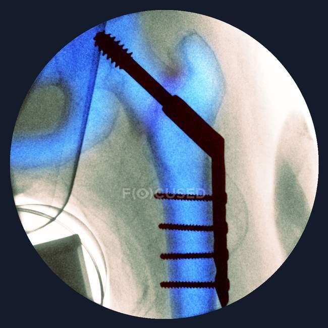 Hanche fracturée coincée — Photo de stock