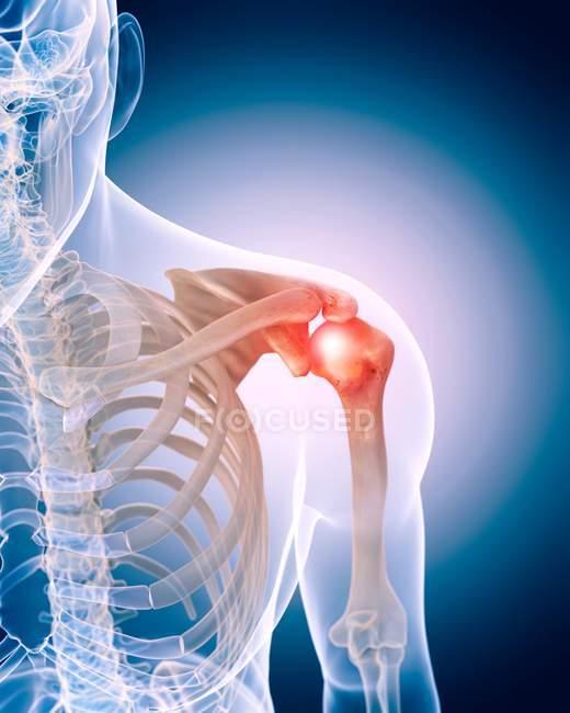 Dolor de hombro humano - foto de stock