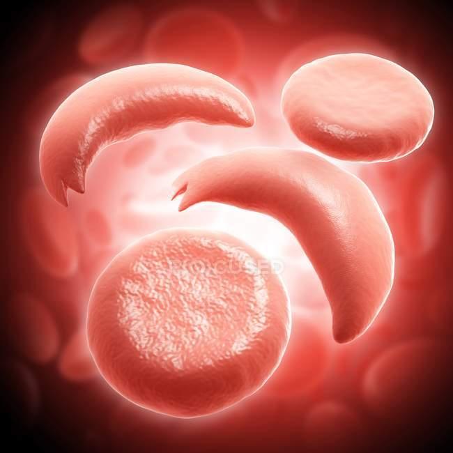 Червоні кров'яні клітини у клітинку серп анемії — стокове фото