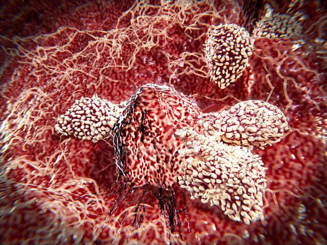 Т-лимфоциты атаки раковых клеток — стоковое фото