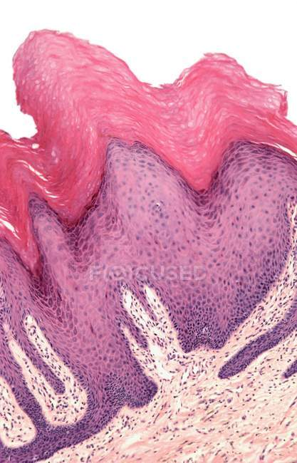 Section through a wart — Stock Photo