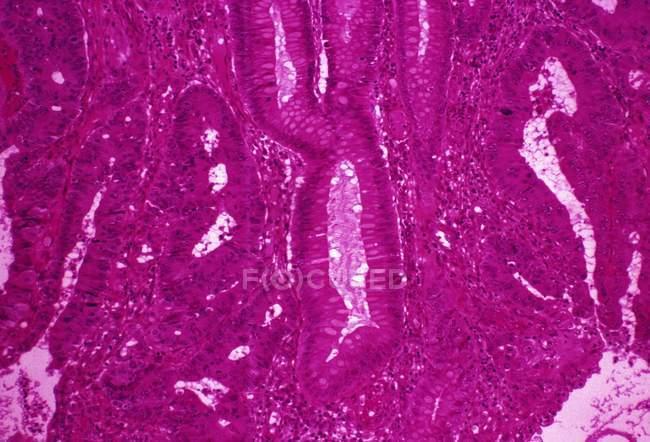 Adenocarcinoma del colon sigmoide - foto de stock