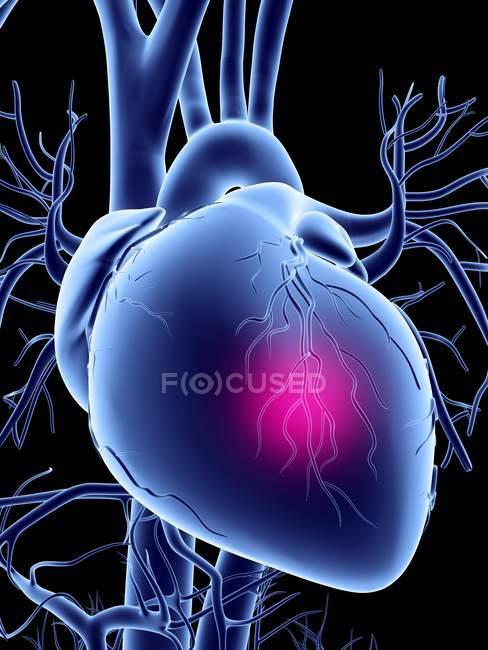 Ataque cardíaco renderização — Fotografia de Stock