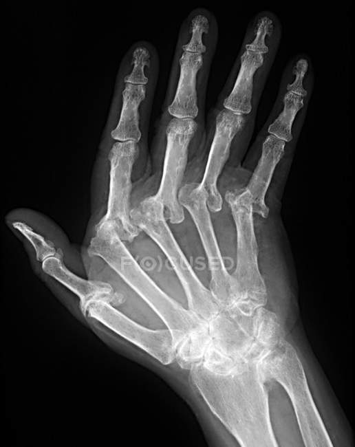X ray machine - Stock Photos, Royalty Free Images | Focused