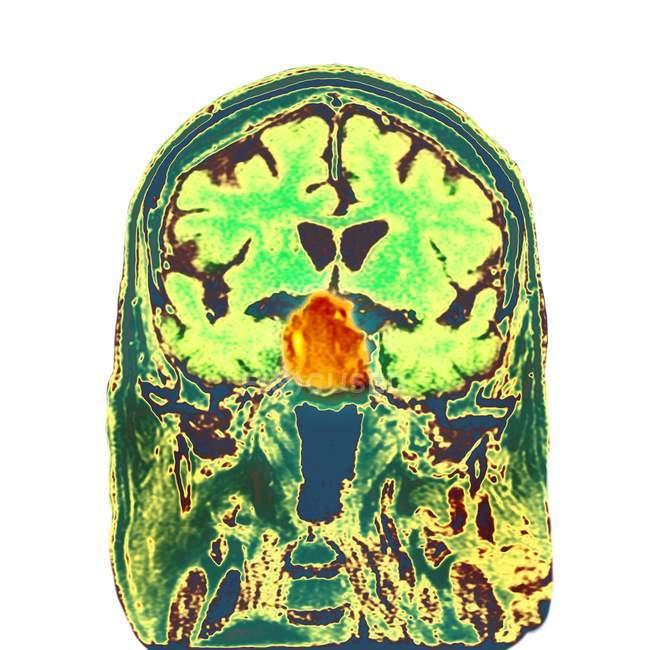 Tumore che interessa la ghiandola pituitaria — Foto stock