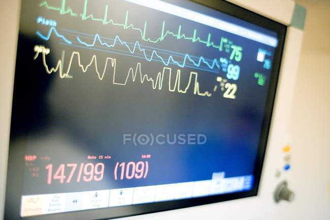 Close-up of vital signs on monitor in intensive care ward. — Stock Photo