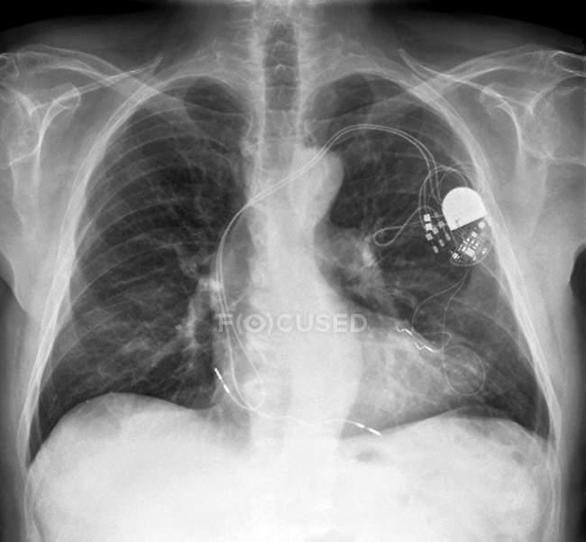 Paciente con marcapasos cardíaco - foto de stock