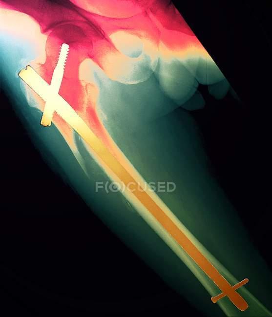Сломанная нога, рентген — стоковое фото