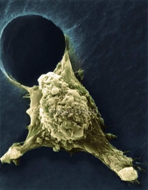 Micrógrafo electrónico de barrido de color (SEM) de una célula tumoral, que muestra protuberancias de pseudopodia (inferior izquierda y derecha), una característica prominente de las células móviles activas . - foto de stock