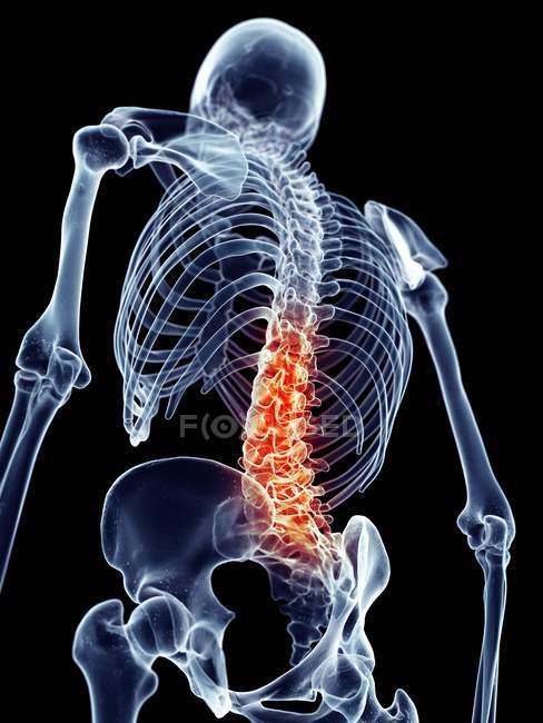 Menschliche Wirbelsäule Schmerzen — Stockfoto | #160558022