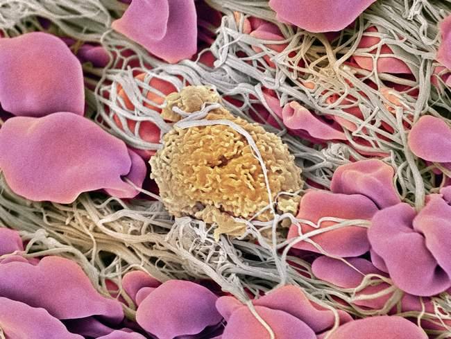 Estructura del coágulo sanguíneo - foto de stock