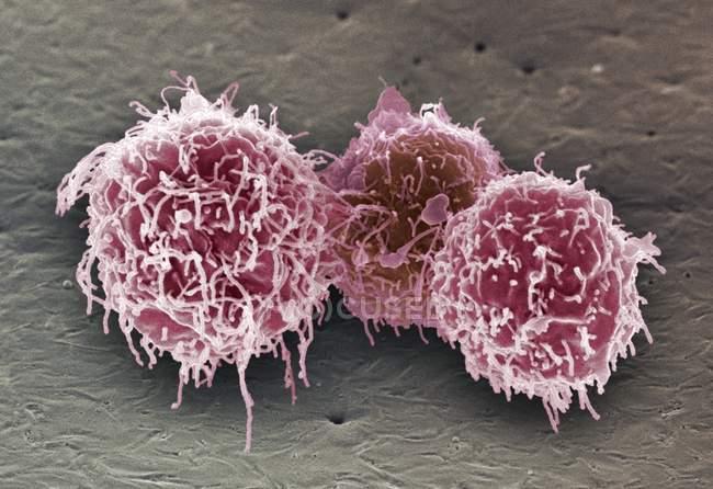 Glóbulos blancos de linfocitos B - foto de stock