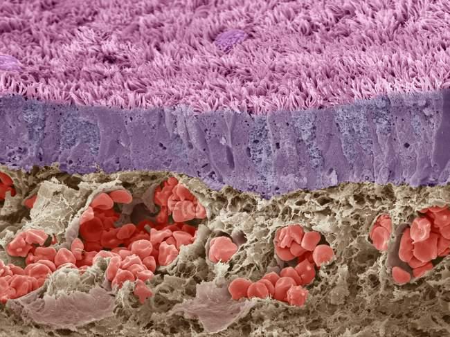 Micrografia eletrônica de varredura colorida (MEV) de uma seção através de uma veia no fígado, que é preenchida com glóbulos vermelhos (eritrócitos, vermelhos ). — Fotografia de Stock