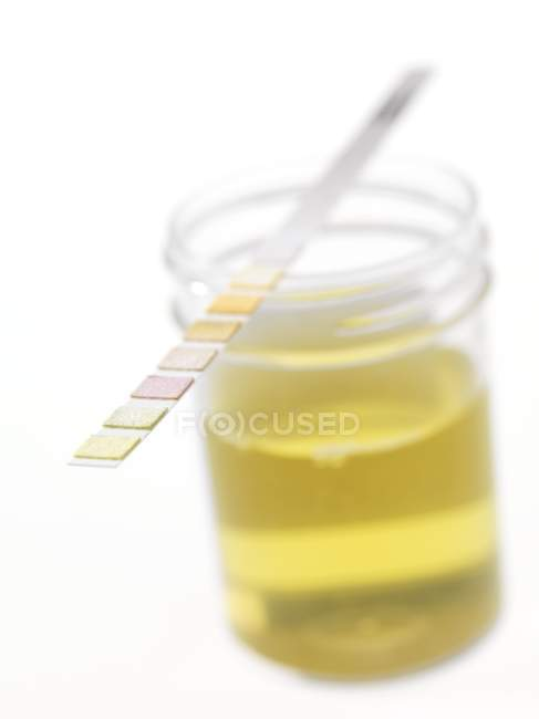 Urine sample with test strip on white background. — Stock Photo