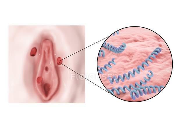 Syphilis ulcer on vulva — Stock Photo