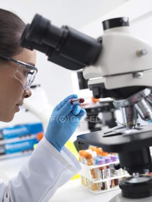Femme scientifique tenue d'échantillon de sang par microscope en laboratoire — Photo de stock
