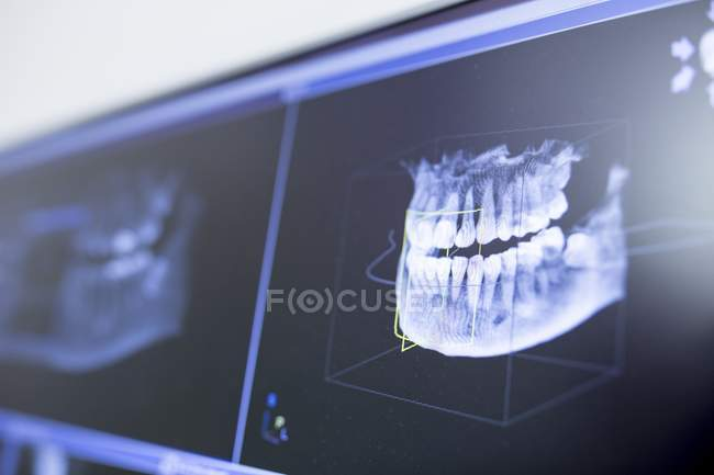 Close-up of teeth x-ray in dental clinic. — Stock Photo