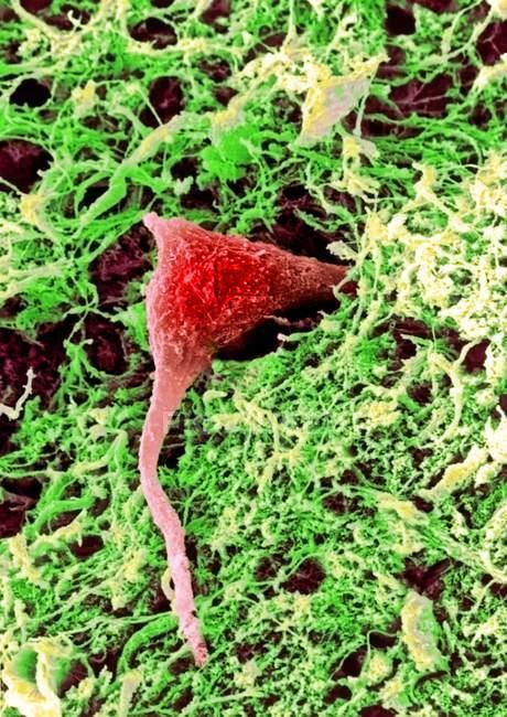 Нервные клетки в ткани мозга — стоковое фото