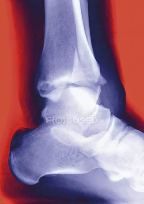 Radiografía que muestra una tibia fracturada - foto de stock