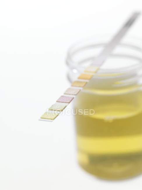 Urine sample with test strip showing results. — Stock Photo