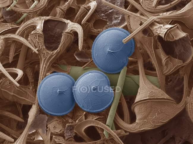 Drei Dinoflagellaten (blau), farbige scanning Electron Schliffbild (Sem). Dinoflagellaten sind einzellige Protozoen. — Stockfoto