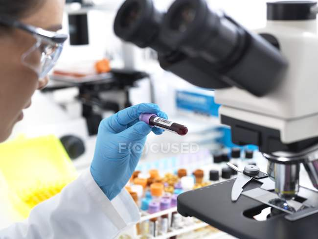 Female scientist holding blood sample by microscope in laboratory. — Stock Photo