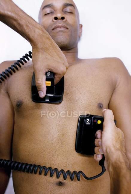 Médico que administra desfibrilación de emergencia al paciente . - foto de stock