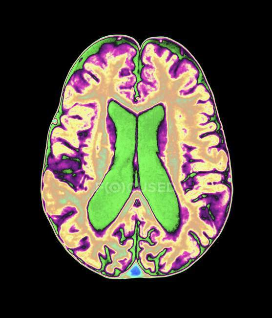 Daño cerebral por organofosfato - foto de stock
