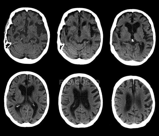 Нормальный мозг человека — стоковое фото
