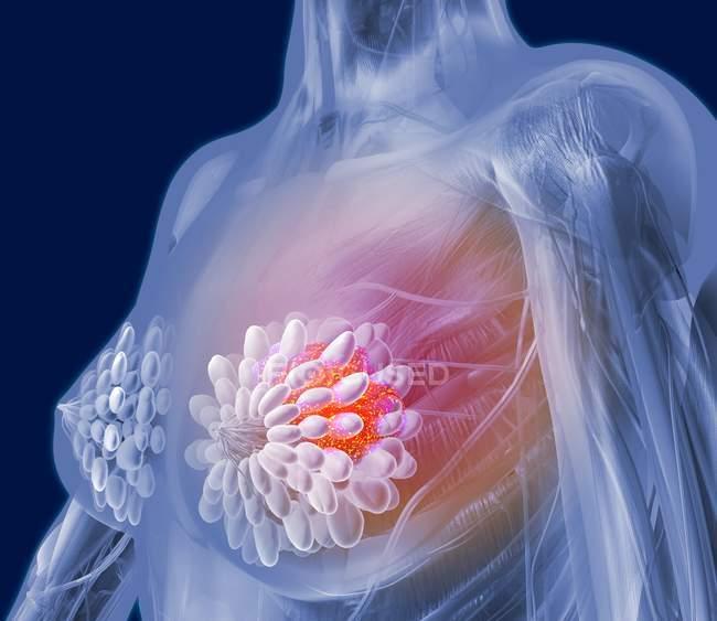 Tumor maligno en una mama de mujer - foto de stock
