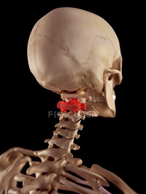 Neck Pain Affecting Cervical Vertebrae Stock Photo 160560538