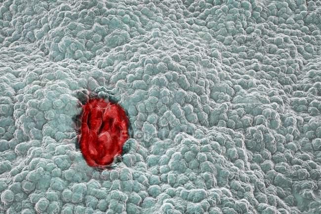 Renderización de úlcera gástrica - foto de stock