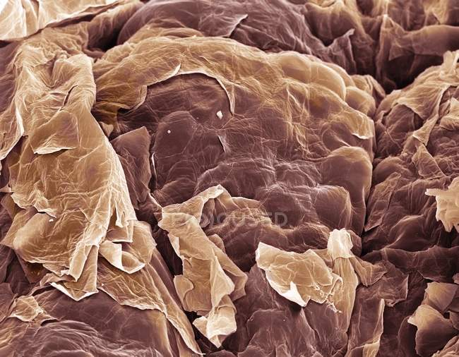 Coloured scanning electron micrograph (SEM) of squamous epithelial cells on the skin surface. — Stock Photo
