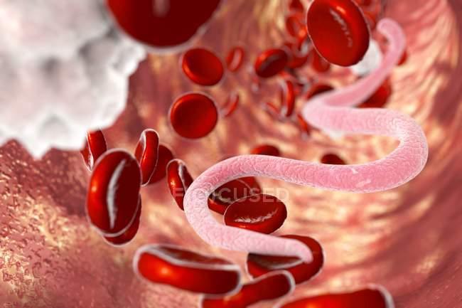 Микрофилярий червей в крови — стоковое фото