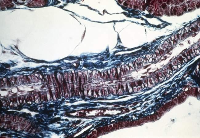 Micrografía ligera de una sección longitudinal a través de una arteriola sana . - foto de stock