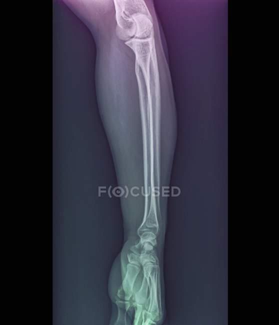 Articulações cotovelo e pulso normais, raio-x — Fotografia de Stock